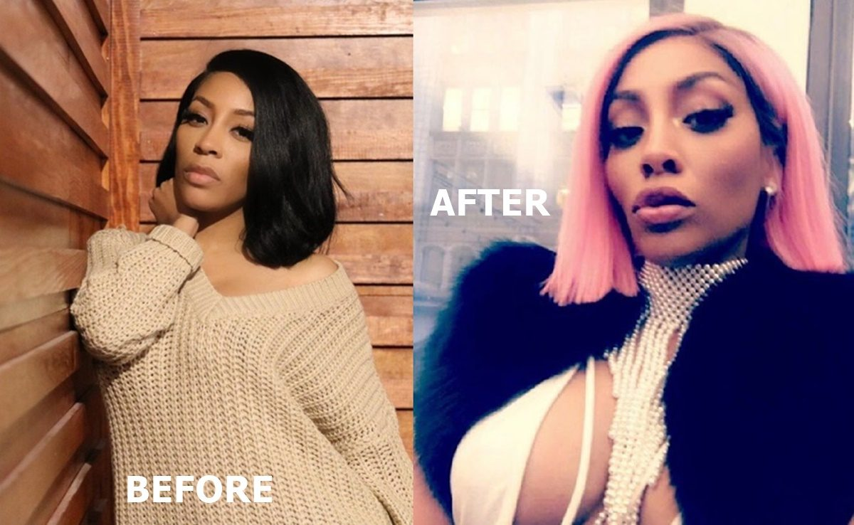 What Happened to K Michelle Face