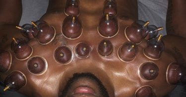 8 Benefits of Cupping Therapy